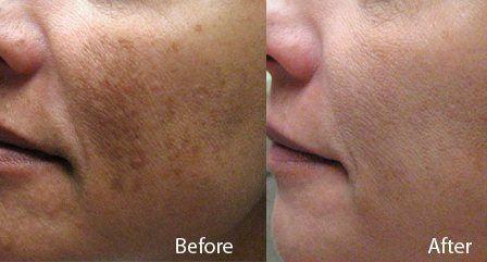 Hyperpigmentation Laser Treatment in Rhode Island